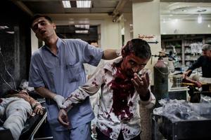 A civilian wounded by mortar shrapnels helped by a nurse inside Dar Al-Shifa hospital.